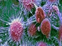 إكتشاف أجسام مضادة قادرة على محاربة الأورام الخبيثة في الجسم