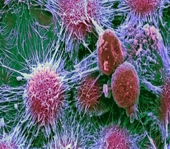 Photo of إكتشاف أجسام مضادة قادرة على محاربة الأورام الخبيثة في الجسم